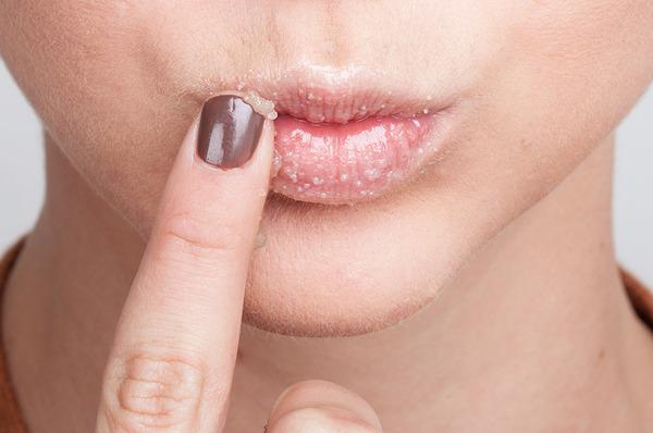 Lips_care